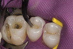 Figure 1  After amalgam removal, teeth Nos. 3 and 4 are isolated, and a chlorhexidine rinse is used to clean the sites.