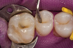 Figure 5  The buccal increment of microhybrid resin is contoured to replicate the natural anatomy of the teeth.