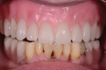 Fig 6. Wax-based tooth try-in is used.