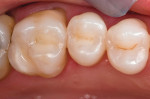 Figure 7  Postoperative occlusal view of the esthetic direct resin restorations performed using the TE approach.