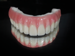 Fig 12. High-water PMMA milled sleep denture offers friction fit only, with no caps.