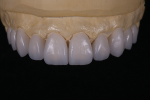 Fig 12. Another case using extra-white GC Initial LiSi Press.