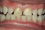 Figure 7  Teeth after 5 weeks of nighttime vital bleaching with 10% carbamide peroxide to minimize the amount of color the composite would need to mask.