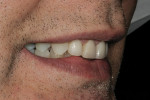 Figure 17  Right lateral smile with improved facial contours and arch form.