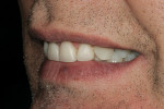 Figure 18  Left lateral smile view.