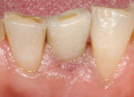 Implants and restorations placed in unfavorable positions. Final restoration with compromised esthetics.