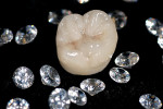 Figure 1  Zir-Max offers clinicians and patients beauty and strength in full-coverage molar and premolar restorations.