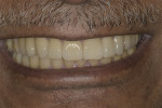 Fig 24. Post-treatment smile.