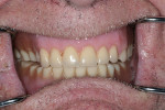 Figure 1  The patient´s existing dentures were loose and had worn teeth and severely decreased vertical dimension.