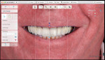 Fig 4. Digital smile design.
