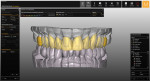 Fig 14. Based on scans utilizing a SAM Articulator interface jig/plate, the final restorations were designed with planning software.