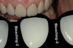 Figure 2  Shading tool to determine Bleaching 2 color for centrals.