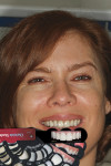 Figure 4  Choosing the cosmetic design, incisal corner shape.