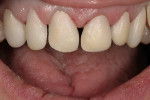 Figure 7  Try-in after dentin layering.