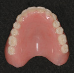 Figure 1&ensp; Maxillary complete denture with anatomical teeth (Vitapan<sup>®</sup> Cuspiform 23º to 28º).