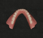 Figure 2&ensp; Mandibular stress-broken, two-implant bar overdenture with abraded teeth (Vitapan<sup>®</sup> Synoform 0º to 5º).