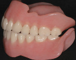 Figure 3  Maxillary complete denture and mandibular implant stress-broken overdenture.