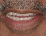 Figure 4&ensp; Vitapan<sup>®</sup> anterior and posterior teeth.