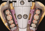 Figure 6&ensp; Filou 28 Denture set-up system: mandibular teeth-jig assembly. Mondial<sup>®</sup> teeth.