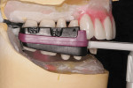 Figure 7  Filou 28 Denture set-up system: maxillary and mandibular teeth-jig assembly. Teeth are ready to seal in wax to underlying denture transitional acrylic bases.