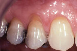 Preoperative image of a facial gingival recession defect associated with tooth No. 5.