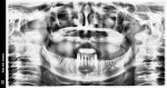 Preoperative panoramic radiograph of the patient's edentulous maxilla.