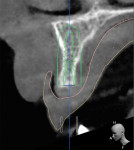 Initial CBCT scan demonstrating minimal bone availability for implant placement.