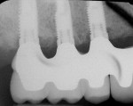 Figure 13  Radiographs of edentulous maxilla: dental implant fixed partial denture.