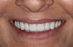 Final smile view of the fixed zirconia prosthesis.