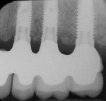 Figure 15  Radiographs of edentulous maxilla: dental implant fixed partial denture.