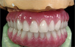 Figure 16  Finished ISUS hybrid denture.
