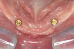 Fig 2. Occlusal view of mandible showing ideal implant placement. (Surgery by Georgios Romanos, DDS, PhD.)