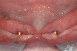 Fig 3. Frontal view of mandible showing ideal LOCATOR abutment height. (Surgery by Georgios Romanos, DDS, PhD.)