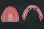 Fig 20. Intaglio of maxillary complete denture and mandibular overdenture, 2 weeks after delivery with LOCATOR housings and attachments in place.