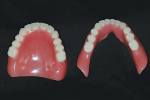 Fig 21. Cameo of maxillary complete denture and mandibular overdenture, 2 weeks after delivery.