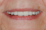 Fig 27. Patient smiling with final prostheses.