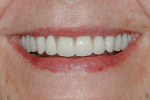 Fig 28. High smile line with final prostheses.