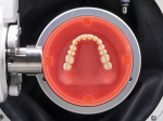Fig 1. A Baltic Denture Blank is shown inside the Ceramill System holder. Only the denture base will have to be milled. With numerous teeth options available, this system is very versatile.