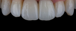 Fig 7. Multilayer zirconia can offer exceptional monolithic esthetics and predictable processing from diagnostic to final.