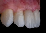 Fig 8. Multilayer zirconia can offer exceptional monolithic esthetics and predictable processing from diagnostic to final.