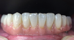 Fig 11. Like multilayer zirconia, PMMA can offer transitional color for lifelike esthetics.