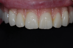 Fig 12. Like multilayer zirconia, PMMA can offer transitional color for lifelike esthetics.
