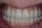 Fig 13. This provisional is made from Temp Esthetic Transitional PMMA from Harvest Dental.