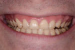 Fig 11. Patient's smile, 3 months after osteo-gingivoplasty procedure.