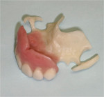 Figure 9: Completed maxillary partial with Thermoflex acetal frame and clasps.