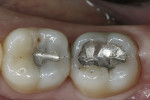Figure 1  The patient presented with decay under the failing occlusal amalgam restorations on teeth Nos. 30 and 31.