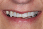 Fig 2. The smile view shows the low lip line and the lingually positioned tooth No. 5.