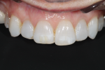 Fig 3. The retracted view shows the uneven incisal edges against black contrast and gingival levels.