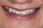 Fig 4. This tipped-down smile view shows the maxillary incisal edges short of the inner vermillion border of the lower lip.