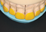 Fig 7. APM putty matrix is applied to the unprepared teeth model for space visualization.